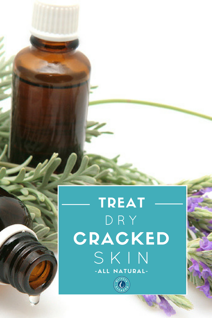 How To Naturally Treat Dry Cracked Skin